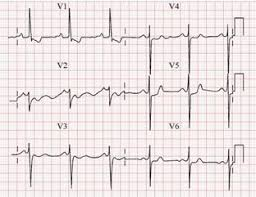 strain pattern ecg meaning ecg a pictorial primer