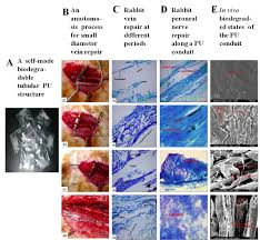 overview on biocompatibilities of implantable biomaterials