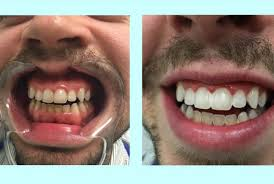 whitening bowyegs awesome home teeth bleaching amazon com dr