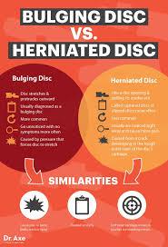 bulging disc back 7 treatments that work axe