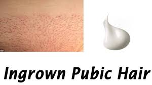 pubic hairs pics treating and preventing ingrown pubic hair how to cure ingrown