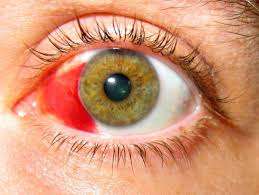 The Blind Spot In The Eye Is Due To Subconjunctival Hemorrhage Broken Blood Vessels In The Eye