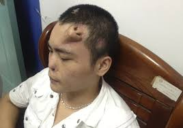 Dafuq Meme Face - a chinese man grew a nose on his forehead so that doctors could