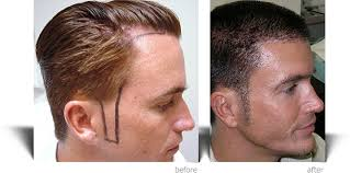 hair plugs for men ziering medical facial hair restoration before and after results