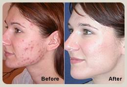 light therapy for acne scars blu u blue light therapy ance treatment before and after blu u
