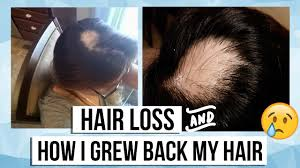 my alopecia areata story hair loss products i used to grow my