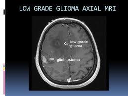 Axial Mri Brain Anatomy Brain Tumors Ppt Video Online Download