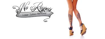no regrets tattoo removal home facebook