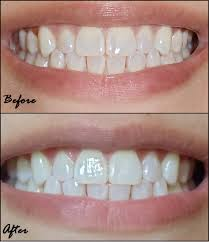 crest 3d white whitestrips with light review crest 3d white whitestrips 2 hour express reviews in teeth whitening