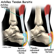 Foot Tendons Anatomy Achilles Tendon Problems Houston Methodist