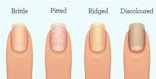 fingernails can indicate organ failure inflammation or worse