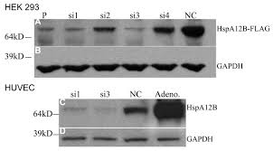 Hours Of Six Flags A Novel Endothelial Specific Heat Shock Protein Hspa12b Is