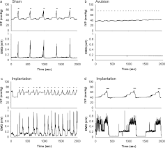 functional reinnervation of the rat lower urinary tract after