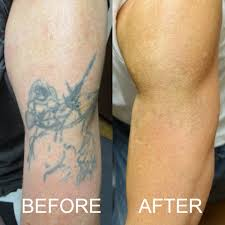 tattoo removal before after before and after photos
