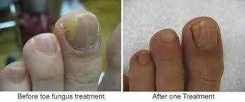 lakewood laser laser u0026 light based therapies botox skin
