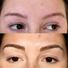 How To Shape Eyebrows With Concealer Before After Gallery Sana Spa