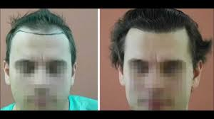best hairtransplant in the world the best hair transplant clinics in europe youtube