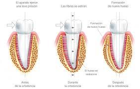 como poner imagenes que se mueven en un video cómo se mueven los dientes ortodoncia adultos barcelona