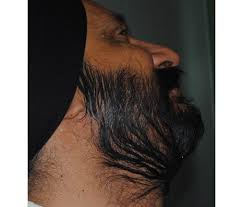 hair transplant in the philppines cost dr sohi beard hair transplant hairsite com