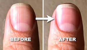 what those vertical lines on your nails mean about your health