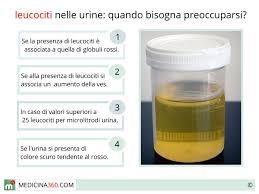 leucociti a tappeto nelle urine