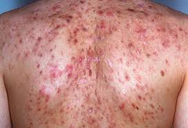 What Causes Blind Pimples In Adults Acne Visual Dictionary Pictures Of Types Of Acne And How To Treat