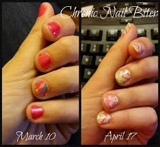 10 best stop biting your nails images on pinterest nail biting