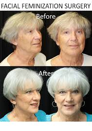feminization hair facial feminization surgery faces pinterest facial