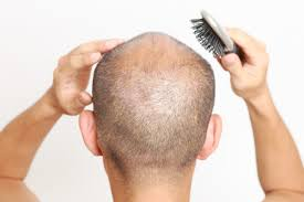 Vitamin Deficiency And Hair Loss Why Hair Loss Is More Common In Men Hair Fall Guide