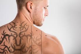 you wanted to know about laser tattoo removal