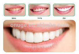brightwhite smile teeth whitening light how to get onuge bright white teeth whitening strips
