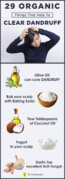 things to get rid of 38 simple tips to get rid of dandruff permanently