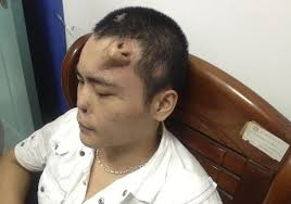Meme Dafuq - a chinese man grew a nose on his forehead so that doctors could