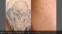 battle of the tattoo removal lasers picosure vs q switch