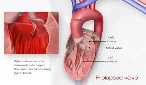 Anatomy Of Heart Valve Problem Mitral Valve Prolapse