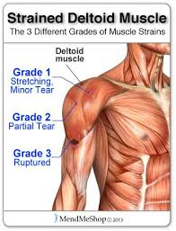 Bench Press Shoulder Impingement Best 25 Deltoid Muscle Pain Ideas On Pinterest Shoulder Pain At