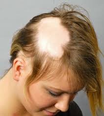 what causes hair loss in women over 50 women s hairstyles over 50 short beautiful 20 short haircuts for