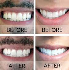 brightwhite smile teeth whitening light teeth whitening results smile brilliant professional teeth