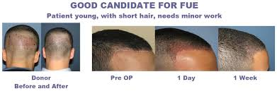 prescreened hair transplant physicians the evolution advantages and disadvantages of follicular unit