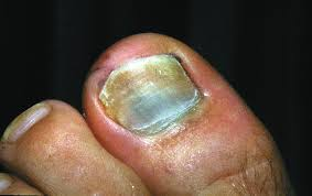 how to address nail bed injuries podiatry today