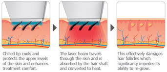 permanent laser hair removal treatments u0026 cost chandigarh