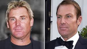 shane warne hair transplant could rooney have been poisoned by the bum hair transplant page