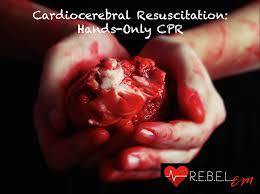 cardiocerebral resuscitation hands only cpr r e b e l em