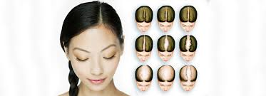 fut hong kong hair transplant hair restoration for women hair transplant dubai