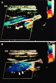 potential and limitations of echocontrast enhanced ultrasonography