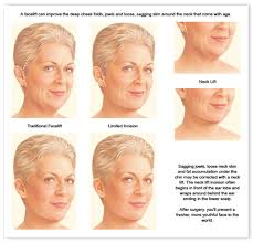 hairstyles for sagging jowls hairstyles for sagging jowls hairstyles by unixcode