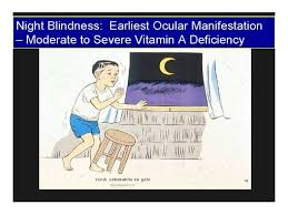 Night Blindness Deficiency Night Blindness Vitamin A