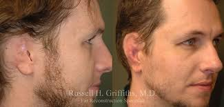cancer of the ear cartilage ear reconstruction after or cancer boise id dr griffiths