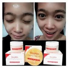 cara membuat wajah menjadi glowing secara alami krim agar kulit wajah licin glowing dan kinclong liyoskin cream