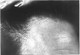 alopecia and breast disease the bmj